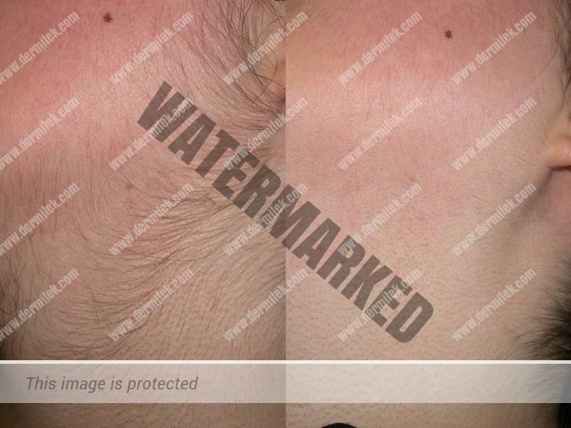 A la izquierdada, antes del tratamiento. A la derecha, 3 meses después de una sesión realizada correctamente