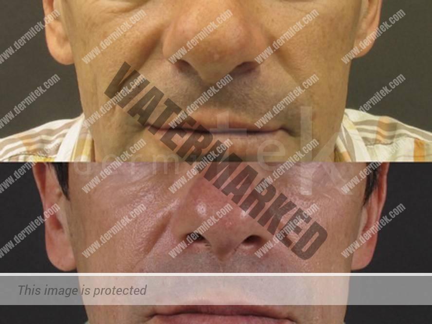 Relleno de arrugas y labios con ácido hialurónico