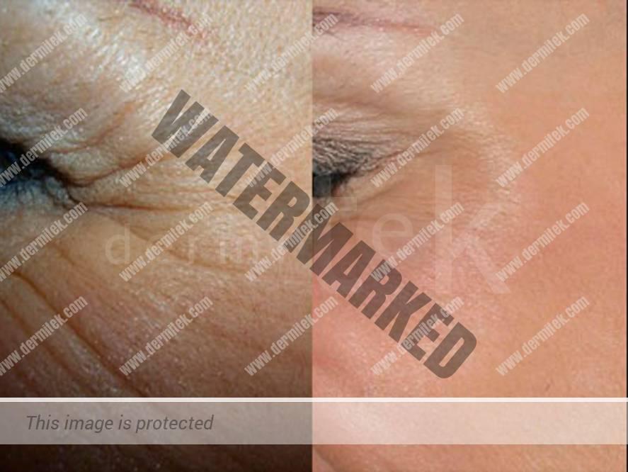 Botox para eliminar las arrugas