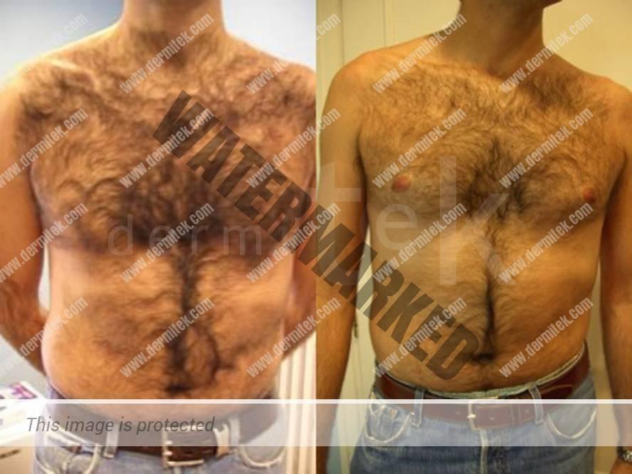 Depilacion Laser - Fotodepilacion Hombres Tratamiento