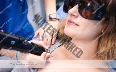 Nuevo láser de picosegundos para rejuvenecimiento en verano