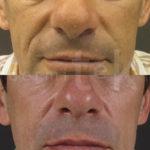 relleno labios acido hialuronico