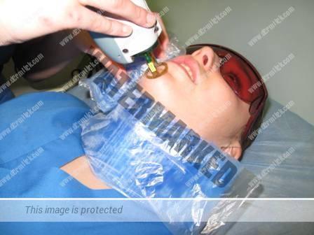 depilacion laser facial mujeres