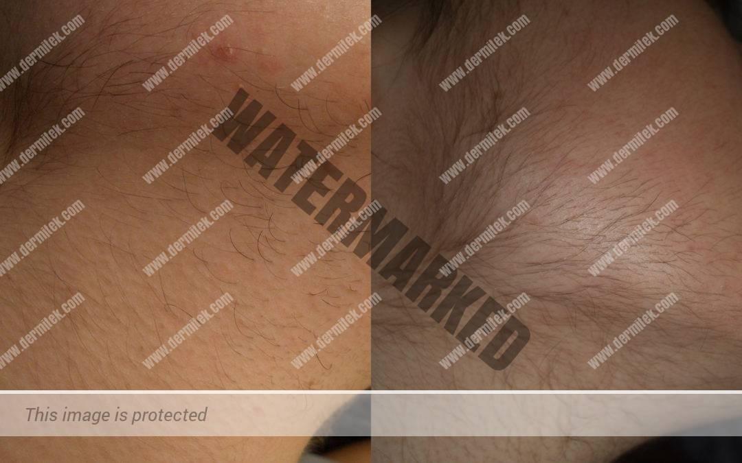 Estimulación pelo depilación láser