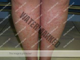 alergia depilación láser
