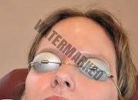 Depilación laser en cejas, riesgos y recomendaciones