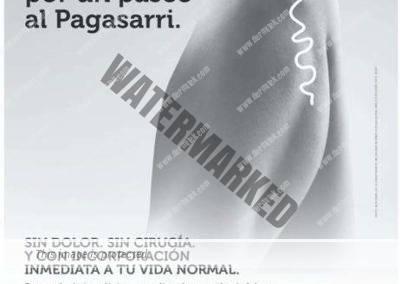 cartel varices pagasarri dermitek