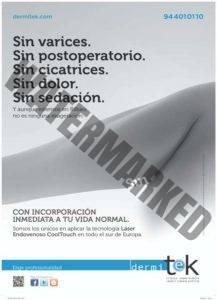 cartel varices sin dermitek