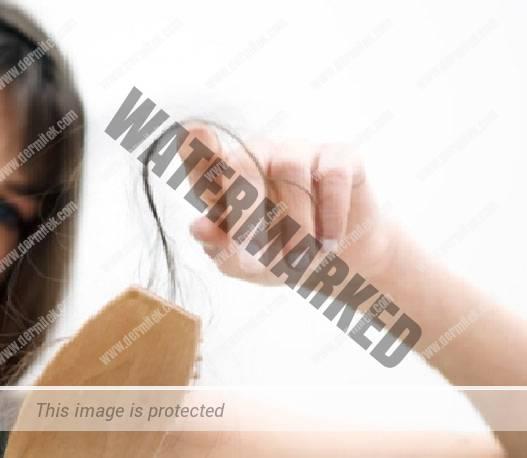 Pérdida de pelo después del verano. Efluvio Telógeno