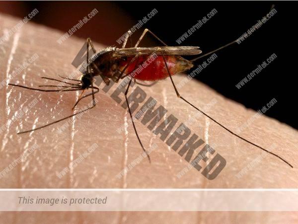 Prevención de las picaduras de insectos