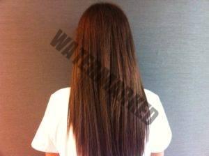 Clínica Dermitek. Caída del cabello