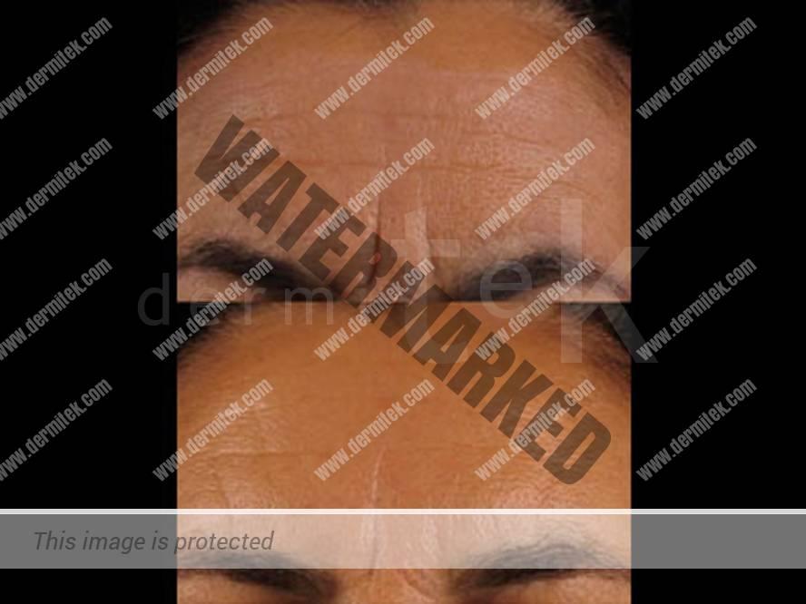 Aven la máscara para la persona que tranquiliza que humedece las revocaciones
