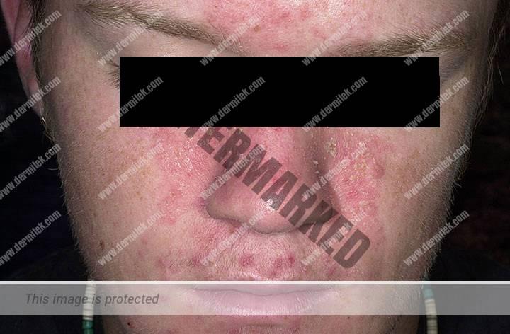 Cómo tratar la dermatitis seborreica en Bilbao, clínica Dermitek