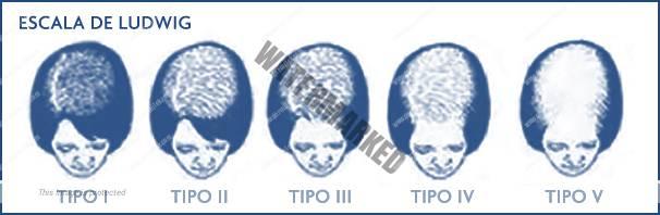 Alopecia en las mujeres. Escala de ludwig