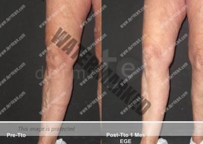 Clínica Dermitek, tratamiento láser endovenoso para varices.