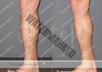 Resultados en Dermitek con tratamiendo láser endovenoso.