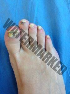 Mikoseptin el ungüento el hongo de los pies