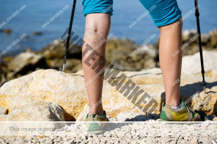 varices en las piernas