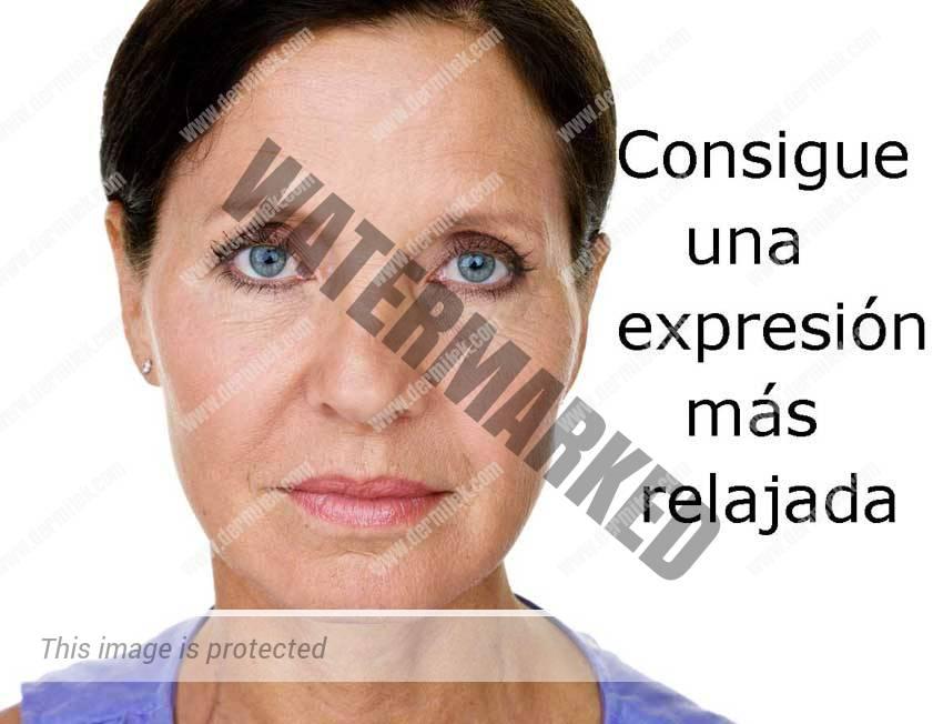 Eliminar arrugas de expresión ¿Pareces cansada?