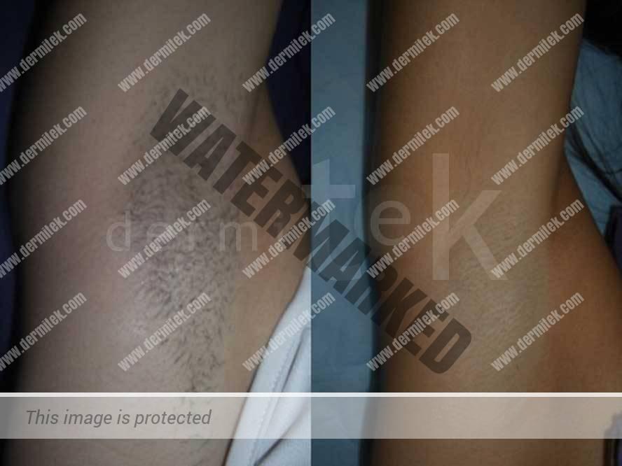 depilacion laser bilbao