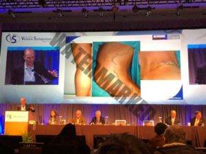 "Tratamientos de las varices, Congreso ""Venous Symposium 2018""."