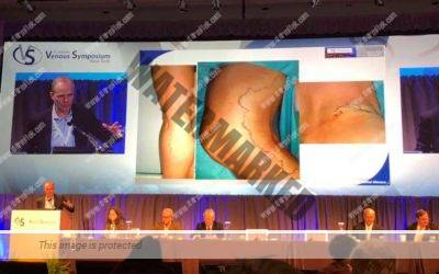 "Congreso de Varices ""Venous Symposium 2018"" en Nueva York"