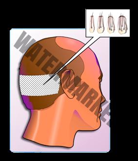 extracción del pelo para implante