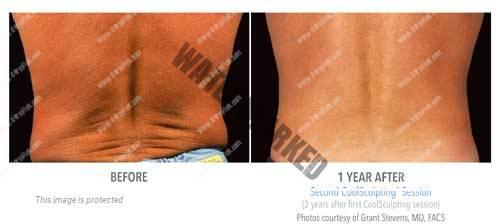 CoolSculpting-cintura