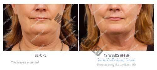 eliminar grasa de papada sin cirugía