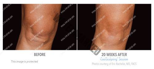 CoolSculpting-rodillas