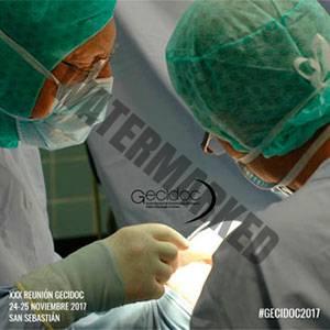 Ponencia Dermitek, experiencia con diferentes láseres y tratamientos de varices gruesas con láser endovenoso.
