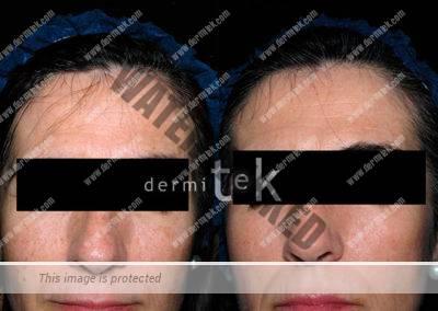quitar manchas de sol en la piel