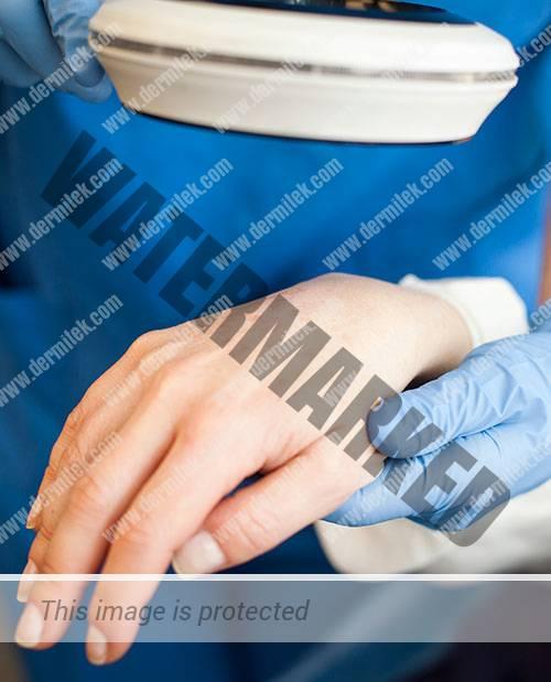 lentigos en las manos