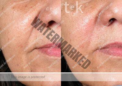 relleno facial ácido hialurónico