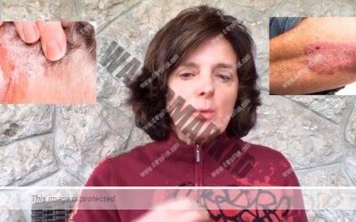 Cómo tratar la psoriasis en casa – Consulta de dermatología online