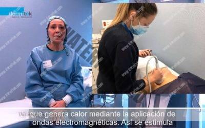 Tratamientos por radiofrecuencia: reduce la grasa localizada sin dolor