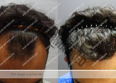 Antes y después implante capilar Dermitek