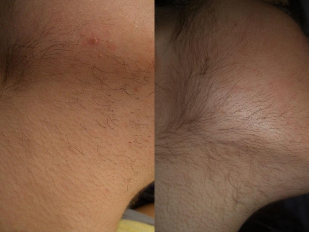 Ejemplo de efecto paradójico. A la izquierda, antes del tratamiento. A la derecha, después de 4 sesiones de tratamiento
