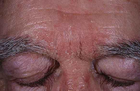 dermatitis seborreica en el entrecejo