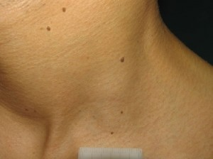 Fibromas blandos