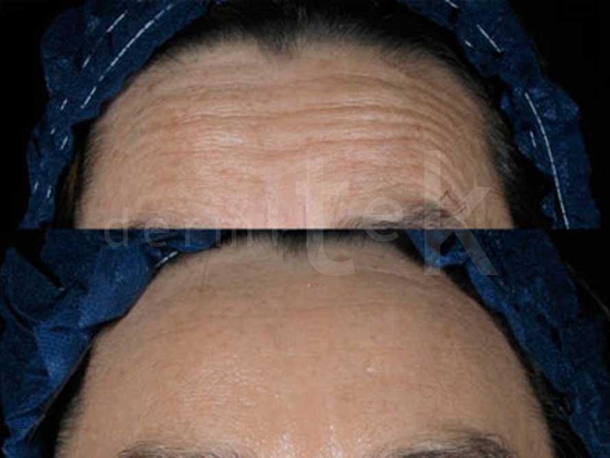 La historia del Botox