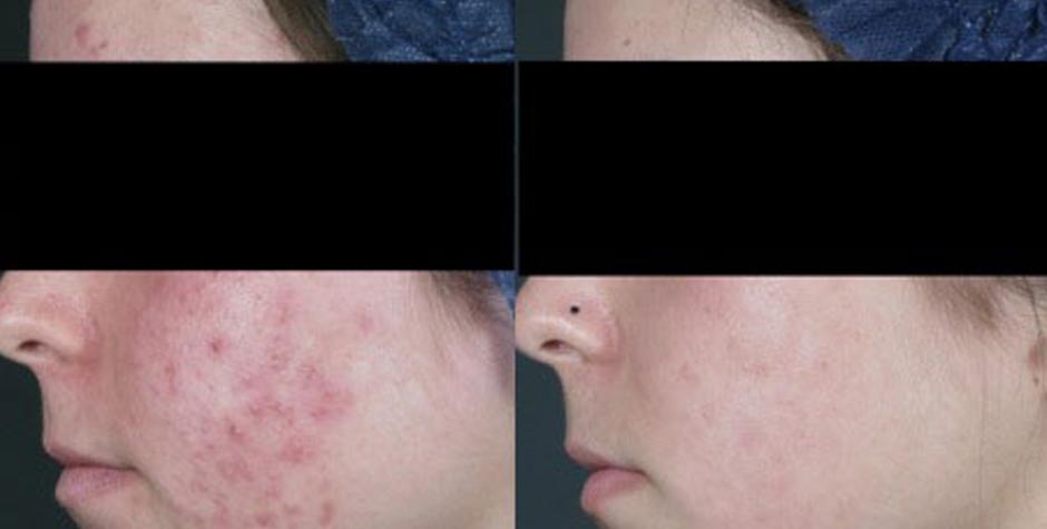 ¿Cómo tratar el acné? Consejos para tratar el acné