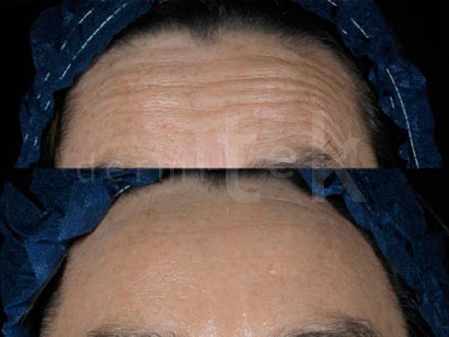 Toxina botulínica / Botox para Arrugas