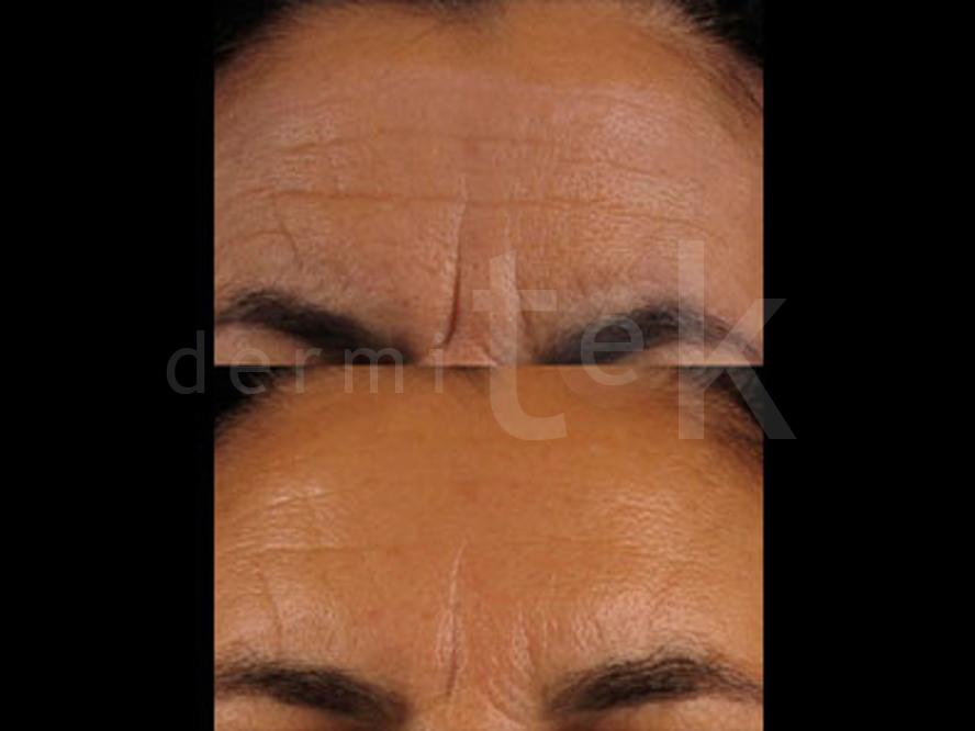 botox para las arrugas del entrecejo
