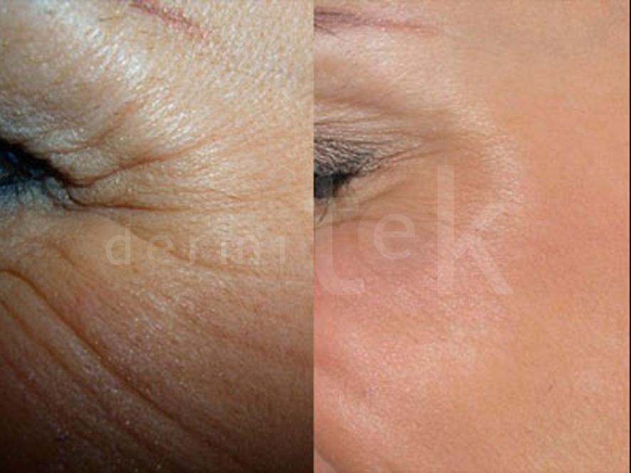rejuvenecimiento para eliminar arrugas