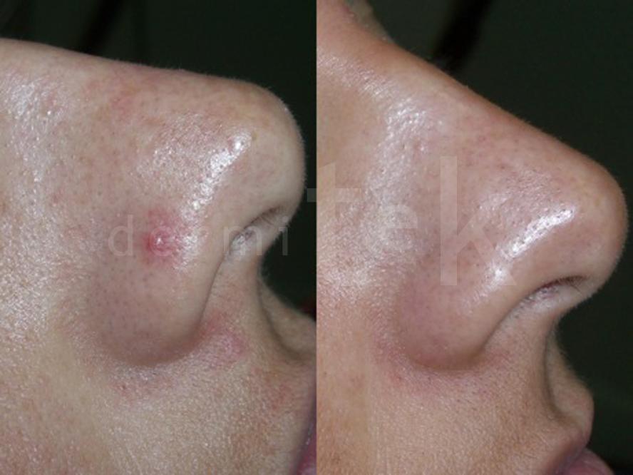 araña vascular en la cara