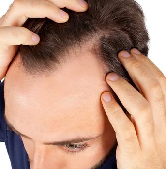 Calvicie masculina: Tratamientos médicos (no quirúrgicos)