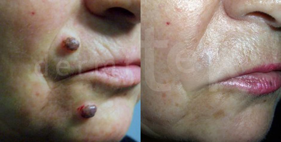 Eliminación de verrugas y queratosis seborreicas Bilbao