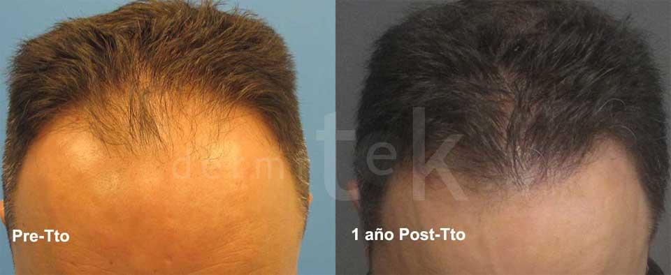 implante/trasplante capilar pelo frente fue