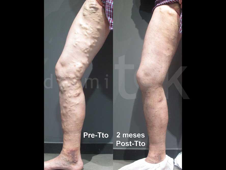 tratamiento de varices con láser endovenoso